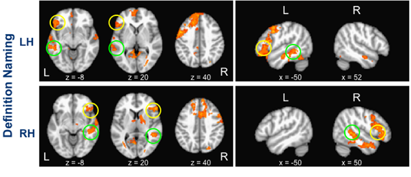 image showing multi brain scans.